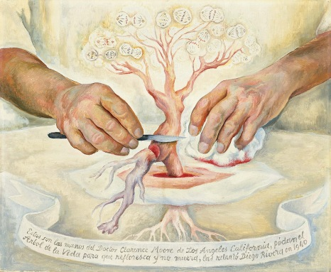 The Hands of Dr Moore by Diego Rivera (1940)